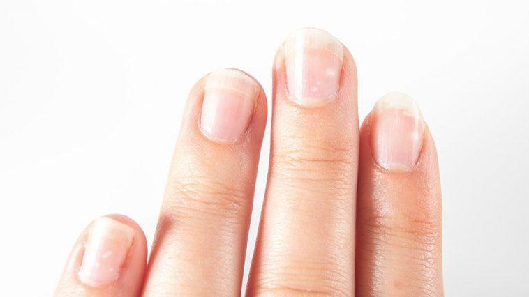 D:\HA ANH\2020\THANG 8- 2020\VI CHẤT\2. 7 dấu hiệu móng tay cho thấy tình phản ảnh sớm các vấn đề sức khỏe của bé\vi-sao-mong-tay-cua-be-noi-hat-gao-mau-trang-758x426.jpg